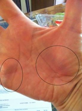 bruised hand